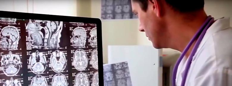 использование искусственного интеллекта для лечения онкозаболеваний застрахованных