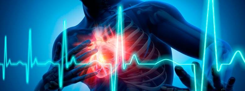 Инфаркт миокарда: что нужно знать? Из-за чего возникает? Исследование страховщиков